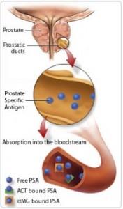 Международные эксперты рекомендуют не применять ПСА тест для скрининга на рак простаты